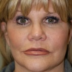 After Photo - Facelift - Case #4174 - Frontal View