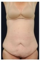 Before Photo - Tummy Tuck - Case #4295 - Abdominoplasty - Frontal View