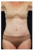 After Photo - Tummy Tuck - Case #4295 - Abdominoplasty - Frontal View