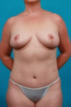 After Photo - Mommy Makeover - Case #4338 - Frontal View