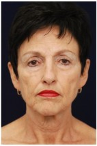 Before Photo - Facelift - Case #4359 - Frontal View