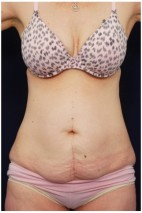 Before Photo - Tummy Tuck - Case #4396 - Frontal View