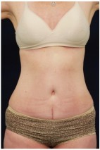 After Photo - Tummy Tuck - Case #4396 - Frontal View