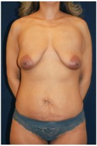 Before Photo - Mommy Makeover - Case #4404 - Frontal View