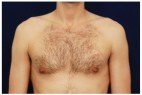After Photo - Gynecomastia - Case #4407 - Frontal View