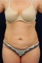 Before Photo - Tummy Tuck - Case #4424 - Frontal View