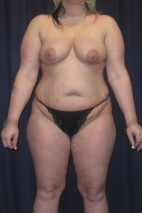 Before Photo - Mommy Makeover - Case #4742 - LipoAbdominoplasty with Bilateral Breast Augmentation/ Creasant Mastopexy's - Frontal View
