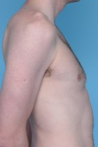 After Photo - Liposuction - Case #4825 - Oblique View