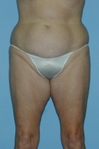 Before Photo - Liposuction - Case #4830 - Frontal View