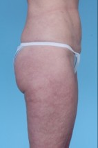 After Photo - Liposuction - Case #4832 - Oblique View