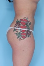 After Photo - Liposuction - Case #4833 - Oblique View