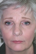 Before Photo - Facial Rejuvenation - Case #9258 - 65 year old, 8 years after facelift and endoscopic brow lift - Frontal View