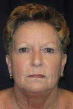 Before Photo - Facial Rejuvenation - Case #9269 - Facial Rejuvination - Frontal View