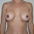 Before Photo - Breast Revision - Case #9306 - 33 year old wanting more central cleavage - Frontal View