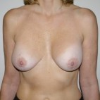 Before Photo - Breast Lift - Case #9307 - Ruptured silicone implants - Frontal View