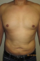 After Photo - Liposuction - Case #10031 - 37 Male Liposuction - Frontal View