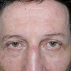 After Photo - Eyelid Surgery - Case #10057 - Blepharoplasty - Frontal View