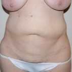 Before Photo - Tummy Tuck - Case #10063 - 48 year old with a history of abdominal contour problem after abdominal liposuction - Frontal View