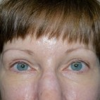 After Photo - Brow Lift - Case #10064 - 55 year old 2 years after Endoscopic Brow Lift and Upper Blepharoplasty - Frontal View