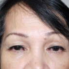 Before Photo - Eyelid Surgery - Case #10630 - Upper Blepharoplasty - Frontal View