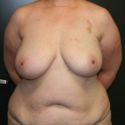 Before Photo - Breast Reconstruction - Case #10634 - 40 y/o - Immediate Bilateral DIEP Flap Breast Reconstruction - Frontal View