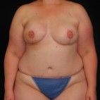 After Photo - Breast Reconstruction - Case #10634 - 40 y/o - Immediate Bilateral DIEP Flap Breast Reconstruction - Frontal View