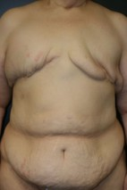 Before Photo - Breast Reconstruction - Case #10741 - 62 y/o - Delayed Bilateral DIEP Breast Flap Reconstruction - Frontal View