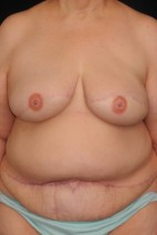 After Photo - Breast Reconstruction - Case #10741 - 62 y/o - Delayed Bilateral DIEP Breast Flap Reconstruction - Frontal View
