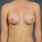 After Photo - Breast Augmentation - Case #10813 - dual-plane subpectoral breast augmentation with silicone gel breast implants - Frontal View
