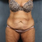 Before Photo - Tummy Tuck - Case #10814 - extended abdominoplasty (tummy tuck) after massive weight loss - Frontal View