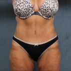 After Photo - Tummy Tuck - Case #10814 - extended abdominoplasty (tummy tuck) after massive weight loss - Frontal View