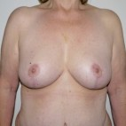 After Photo - Breast Lift - Case #11012 - Full Mastopexy - Frontal View