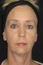 Before Photo - Facial Rejuvenation - Case #11036 - 47 Year Old Woman's facial rejuvenation - Frontal View
