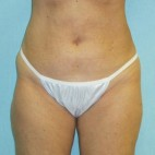 After Photo - Liposuction - Case #11049 - Liposculpture - hips and thighs - Frontal View