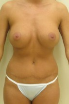 After Photo - Mommy Makeover - Case #11055 - Abdominoplasty with Breast Augmentation - Frontal View
