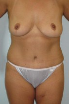 After Photo - Mommy Makeover - Case #11056 - Abdominoplasty and Full Mastopexy - Frontal View