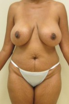 Before Photo - Mommy Makeover - Case #11057 - Abdominoplasty, Mastopexy, Breast Re-Augmentation, Liposculpture - Frontal View