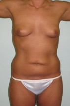 Before Photo - Mommy Makeover - Case #11058 - Abdominoplasty, Mastopexy, Breast Augmentation and Liposculpture of hips after Weight Loss - Frontal View