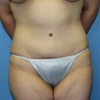 After Photo - Tummy Tuck - Case #11108 - Abdominoplasty - Frontal View