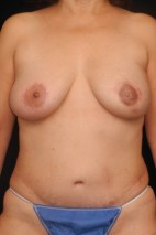 After Photo - Breast Reconstruction - Case #11139 - 57 y/o - Immediate Unilateral Left DIEP Flap Breast Reconstruction - Frontal View
