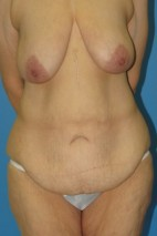 Before Photo - Lower Body Lift - Case #11152 - Body lift/lateral chest lift - Frontal View