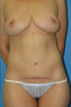 After Photo - Lower Body Lift - Case #11152 - Body lift/lateral chest lift - Frontal View