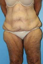 Before Photo - Lower Body Lift - Case #11154 - body lift - Frontal View
