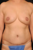 After Photo - Breast Reconstruction - Case #11169 - 52 y/o - Immediate DIEP Flap Breast Reconstruction - Frontal View
