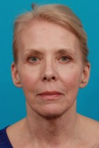 After Photo - Facial Rejuvenation - Case #11189 - Frontal View