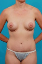After Photo - Mommy Makeover - Case #11190 - Frontal View