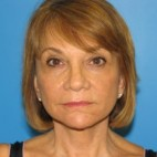 After Photo - Facelift - Case #11221 - Frontal View