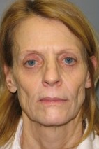 Before Photo - Facelift - Case #11223 - Frontal View