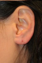 After Photo - Fillers - Case #11301 - Earlobe filler - Frontal View