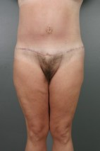 After Photo - Lower Body Lift - Case #11806 - Lower Body Lift after Massive Weight Loss - Frontal View